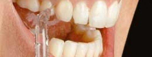 ¿Para qué sirve un irrigador dental?