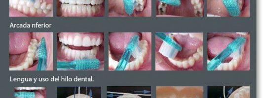 Malos hábitos en el cepillado de dientes