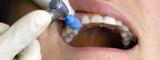 Una limpieza dental regular podría disminuir el riesgo de enfermedades cardíacas